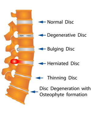 degenerative disc