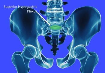 Superior Hypogastric Plexus Block